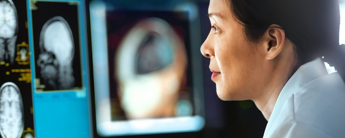 asian woman looking at brainscans on computer